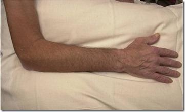 肿瘤病人的肌肉萎缩或许有救了