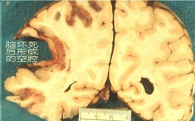 神经断了 手术接上会怎么样呢?