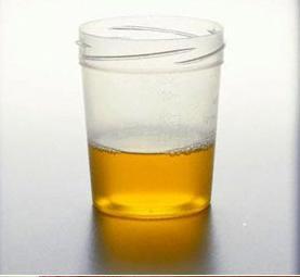 喝尿健身有没有科学依据