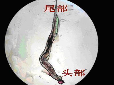 做肠镜时看到的横结肠里一条虫子