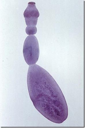 细粒棘球绦虫, 包虫病 的元凶图片