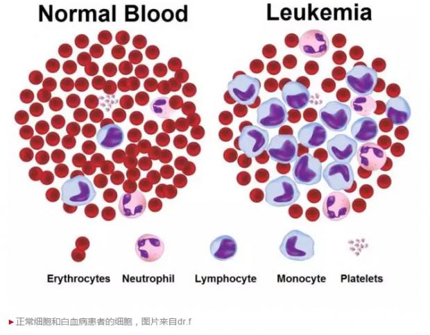 华人学者提出治疗白血病新方法,或可清除肿瘤干细胞