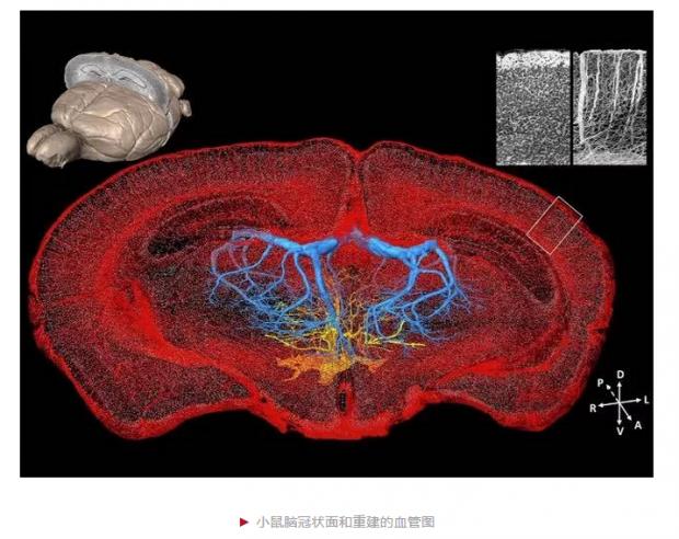 第一次,让全脑的每一条血管清晰可见