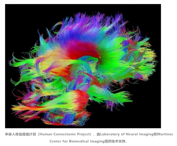 Nature人类行为:如何优化网络结构,最大程度发挥神经网络的认知潜力?