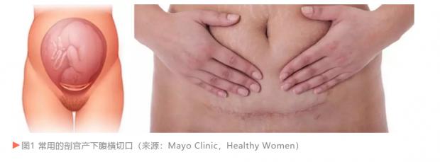 剖宫产还是顺产?这可能是个艰难的医学选择