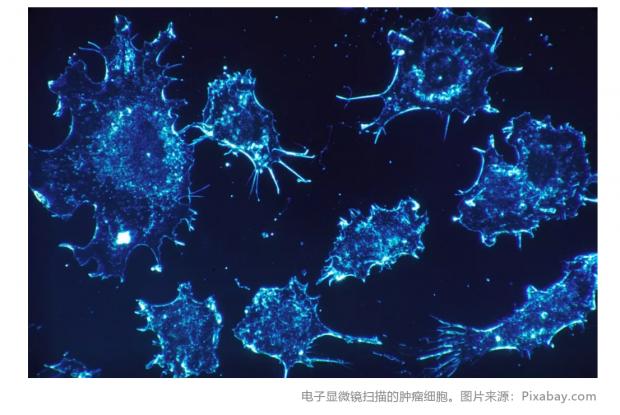 癌症治疗新发现:甘露糖可抑制肿瘤生长
