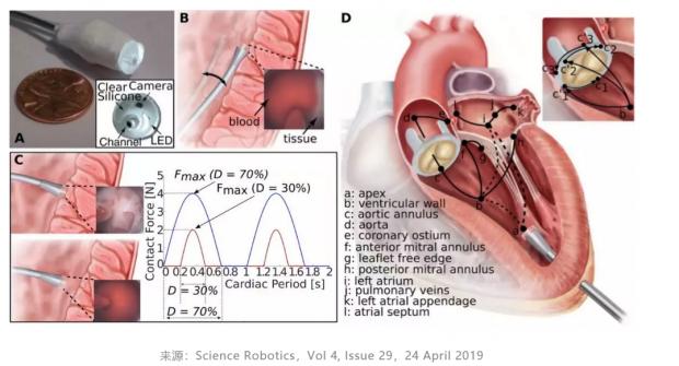 """复活死亡大脑、在心脏""""自动驾驶""""……医疗科技正在重新定义死亡"""
