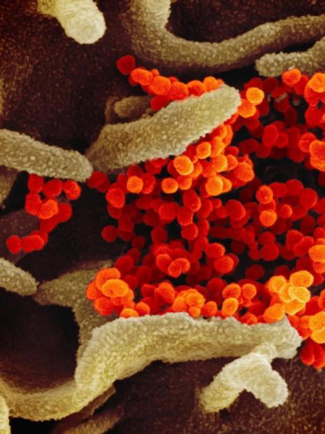 新冠状病毒将走向何方?