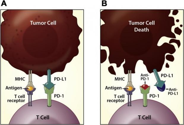 让免疫细胞再次伟大(MIGA)